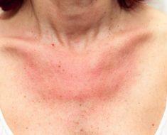 Alergia ao sol: o que é + dicas para se proteger e tratar o problema